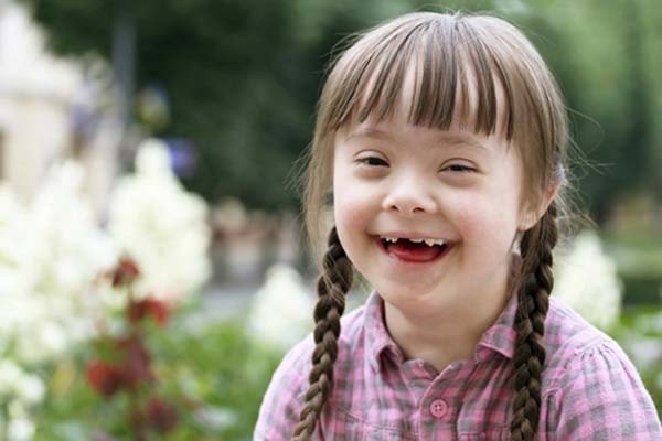 Những nguy cơ khiến trẻ mắc phải hội chứng Down 1