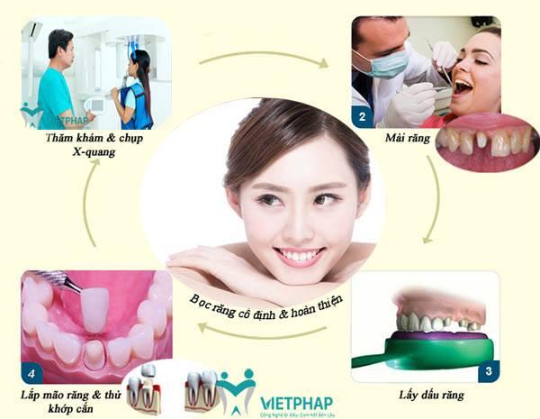 Quy trình bọc răng sứ Cercon tiêu chuẩn