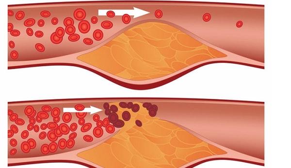 Tìm hiểu về căn bệnh sa sút trí tuệ do mạch máu 1