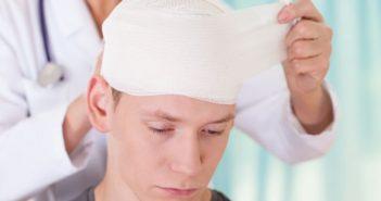 co giật sau chấn thương sọ não